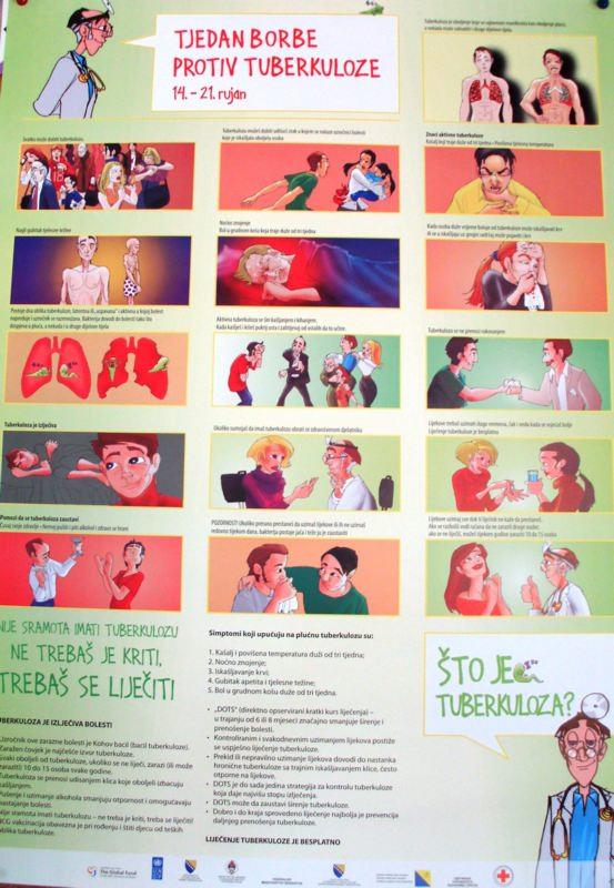 tuberkuloza_2